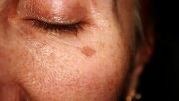 Resultado de imagen para Elimina las manchas de tu rostro de forma natural